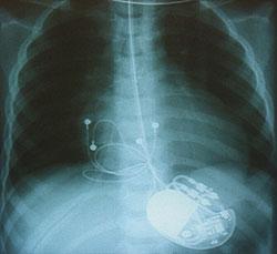 Auf dem Röntgenbild erkennt man den Herzschrittmacher und die zum Herzen führenden Elektroden